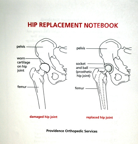 Hip Replacement 5 Diagrams And Chocolate East Of 82nd